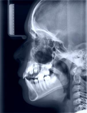 RTG zębów
