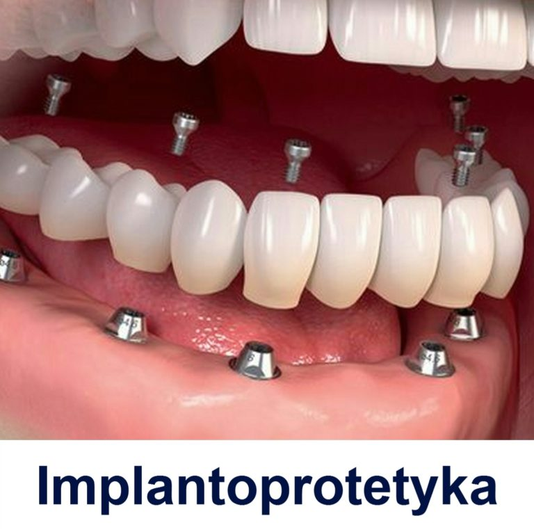 https://curodental.com/proteza-na-implantach/