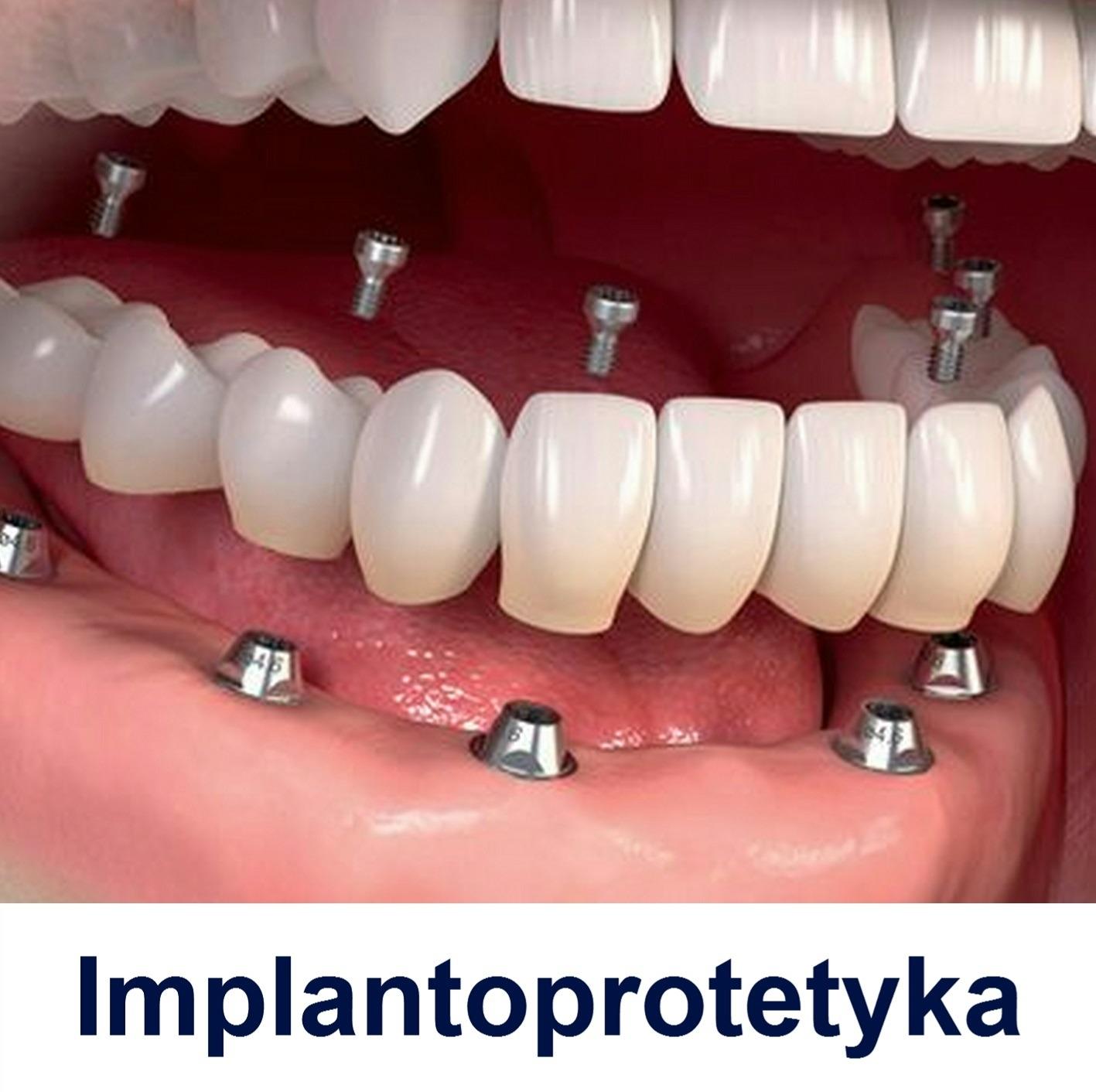 http://curodental.com/proteza-na-implantach/