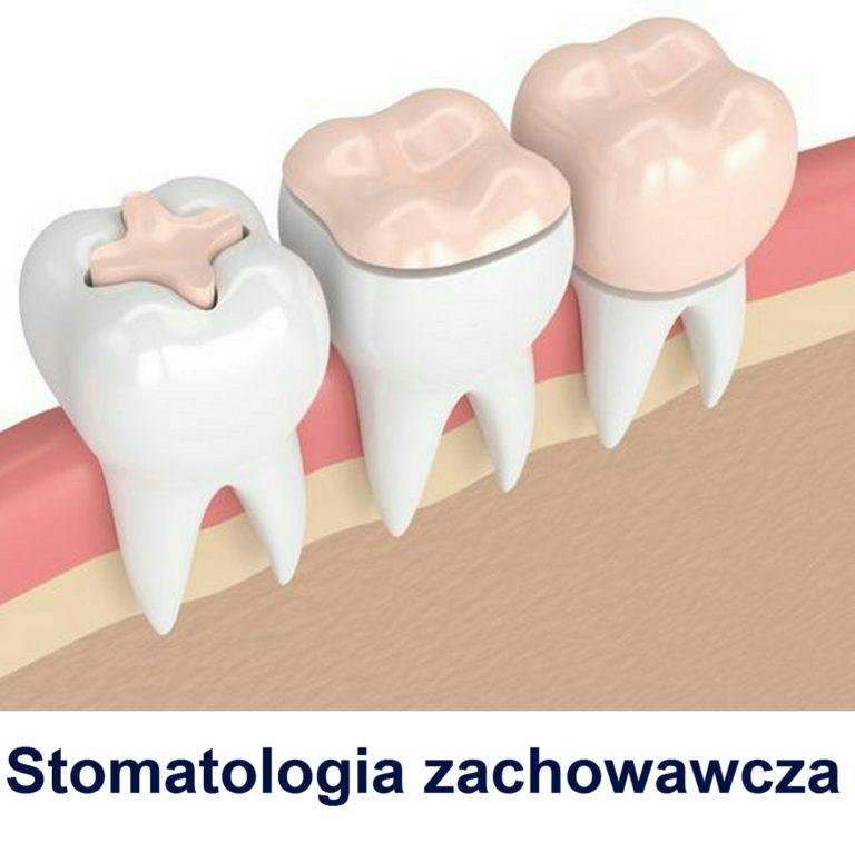 Stomatologia zachowawcza Gdańsk