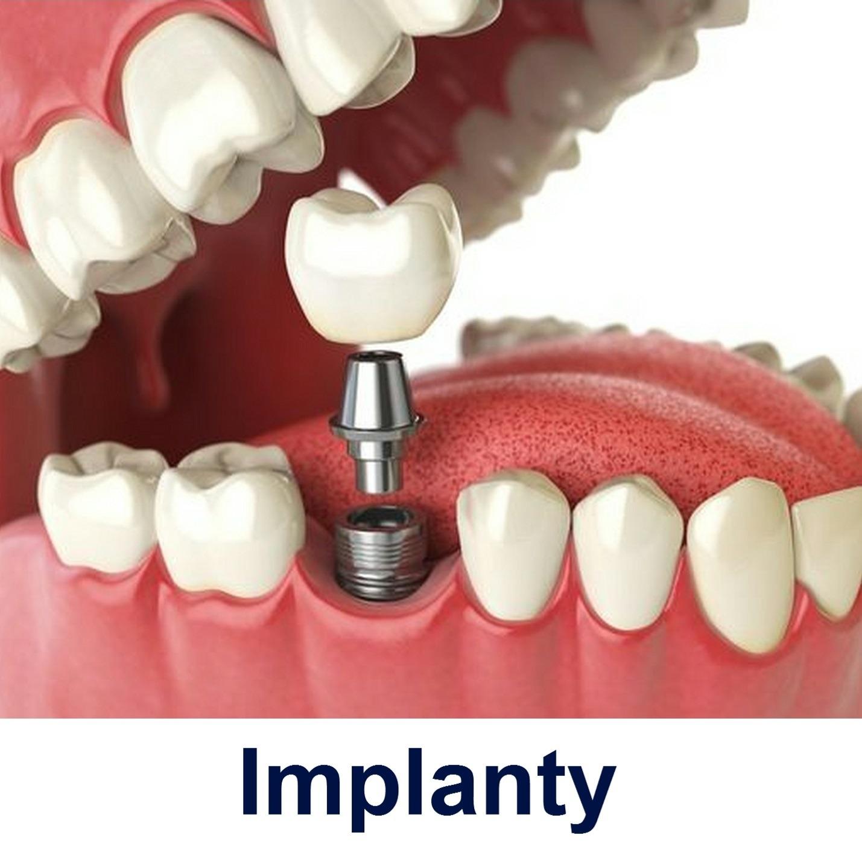 Implanty Gdańsk