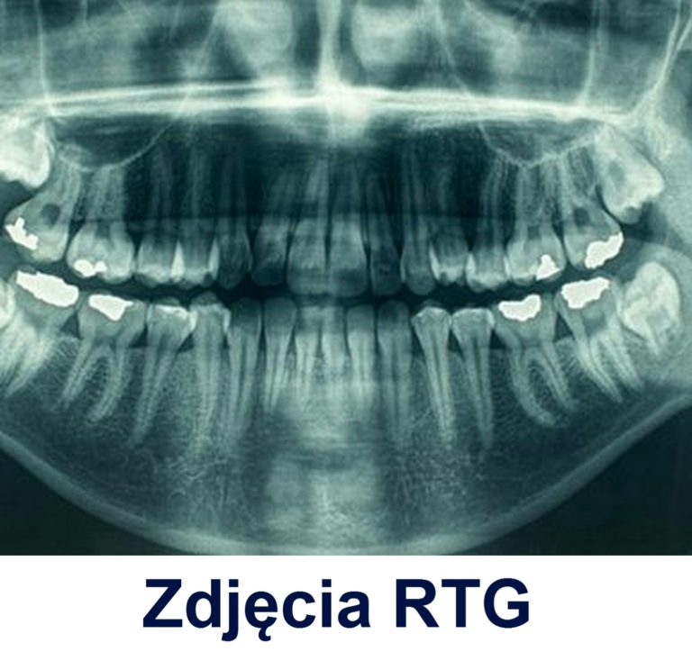 Zdjęcia rentgenowskie Gdańsk