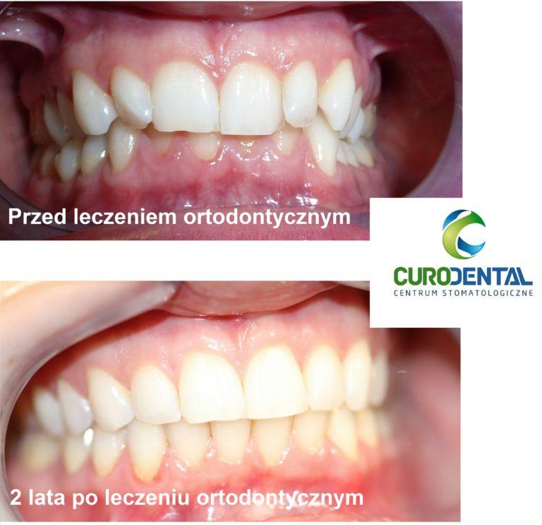 aparat ortodontyczny Gdańsk