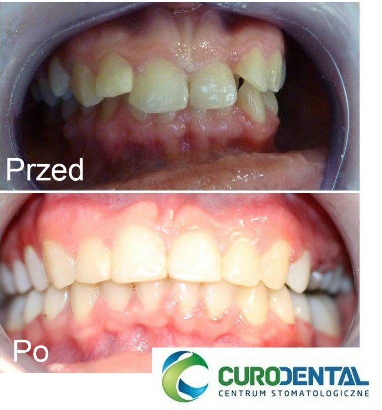 leczenie ortodontyczne Gdańsk