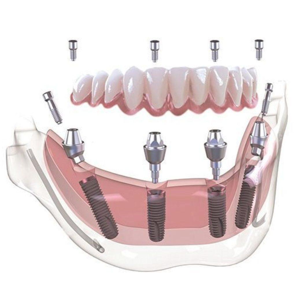 proteza na implantach Gdańsk